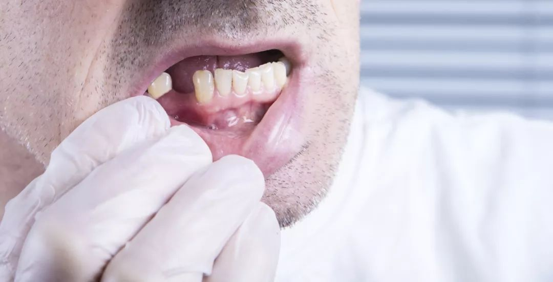 为什么种植牙要那么贵?