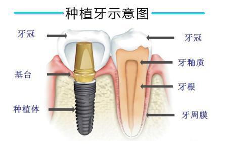 一颗种植牙包括种植体、基台和牙冠